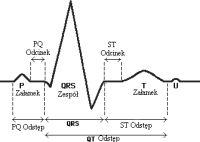 EKGkop